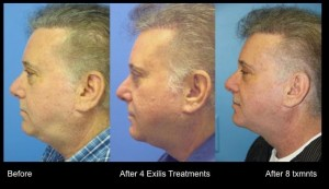 Exilis before and after chin