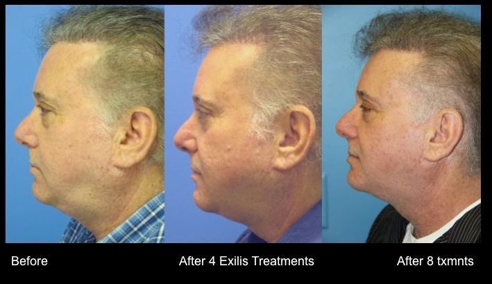 Exilis Before And After Chin Radin Skin Centre