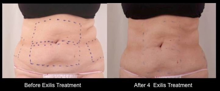 Exilis before and after3