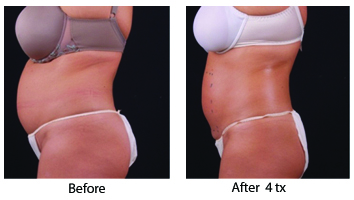 before and after Exilis Elite