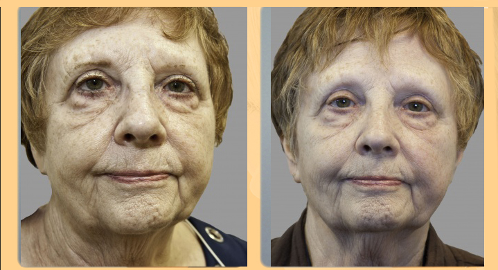Exilis Before And After Photos Radin Skin Centre