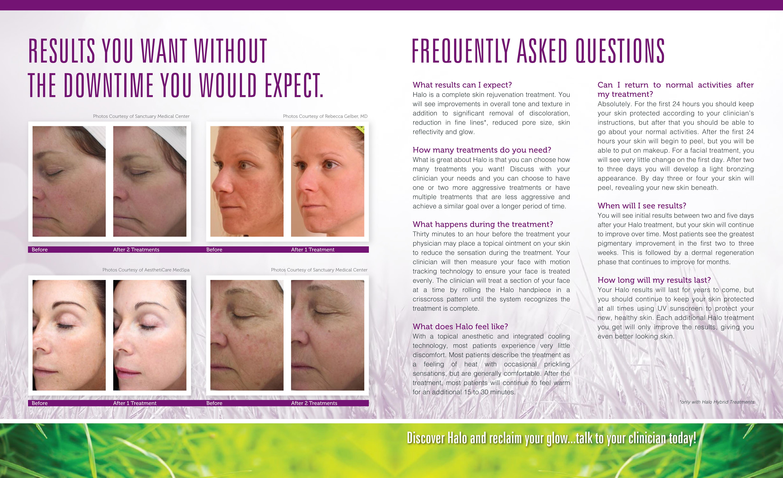 Sciton Halo Patient Brochure081914 V3 6 Pdf View Radin